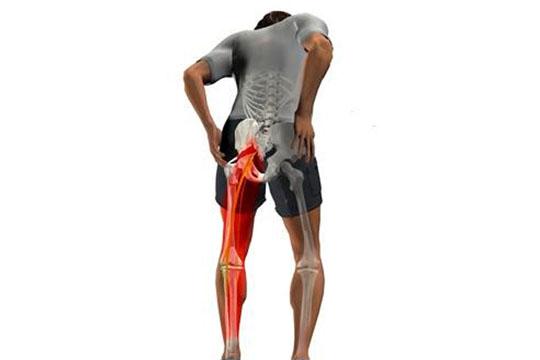 Como surge a dor ciática – Sintomas e Danos