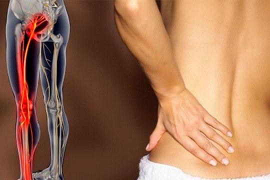 Como combater as dores do Nervo Ciático com Pilates